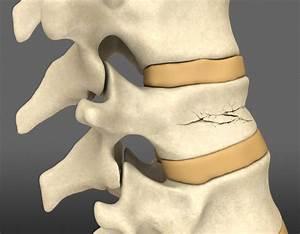 Упражнения цигун от остеохондроза
