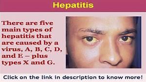 See now symptom... Hepatitis C Symptoms