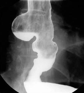 Disease Of Esophagus