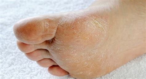 signs  symptoms   common feet problems