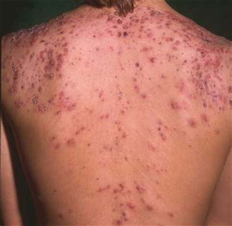 best treatment for pimples acne scars back acne scars treatment