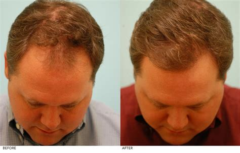 Male Pattern Baldness Dallas, Androgenetic Alopecia Plano