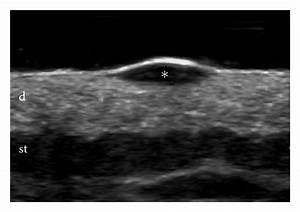 Sonography Of The Primary Cutaneous Melanoma  A Review