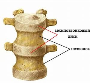 Пояснично крестцовый остеохондроз лечение народными средствами