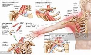 Medical Illustration Detailing Thoracic Outlet Syndrome Stock Illustration