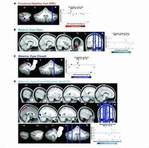 Functional Behavioral Consequences  Brain