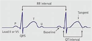 The Qt Interval Is Measured From The Onset Of The Q Wave To The End Of