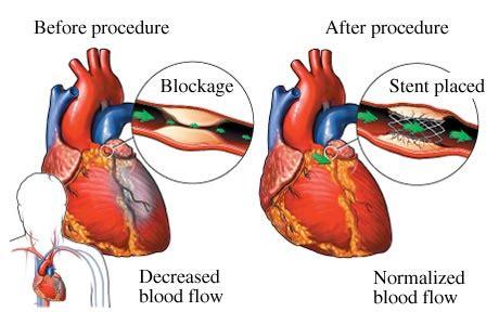 Heart Arteries Blockage Stents