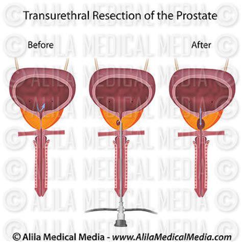 alila medical media surgery images