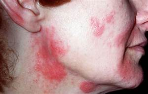 Aldara-induced psoriasis -like skin inflammation : isolation and