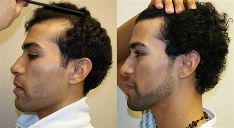 Receding Hairline Restored even for Young People