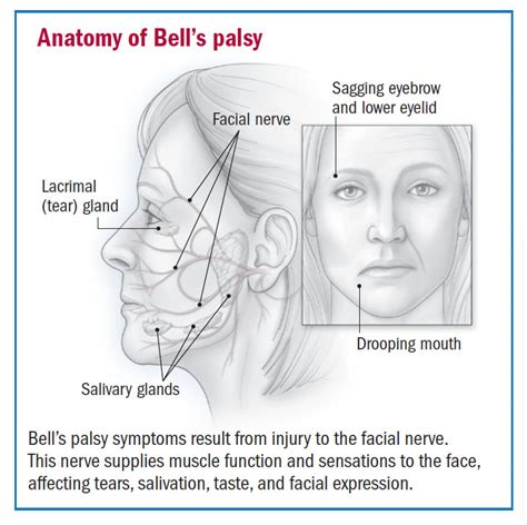 How does bell's palsy start
