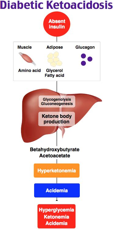 diabetic ketoacidosis rosh review pathophysiology