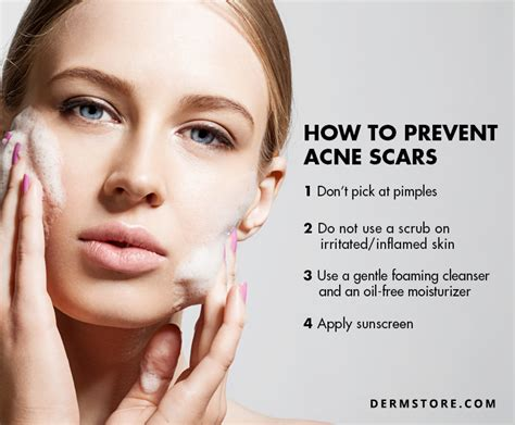 benefits  microdermabrasion  acne scars dermstore blog