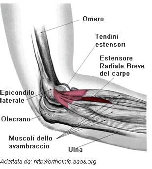 dolore interno braccio sinistro gomito tennista epicondilite laterale