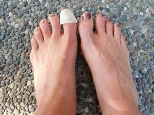Перекись водорода в лечении грибка на ногах
