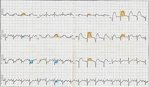 Anterior Wall Myocardial Infarction  Acute Anterior Wall
