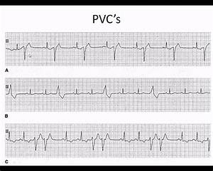 Easy EKG: Premature Ventricular Contractions and Atrial ...