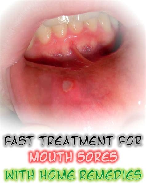 mouth sores home remedies diy magazine