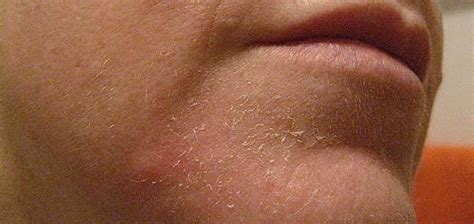 Natural remedies for psoriasis on face