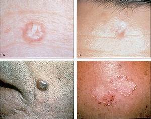 Common types of basal cell carcinoma. (A) Nodular; (B) pigmented; (C) sclerosing; (D ...  Skin Cancer Birthmarks - pigmented