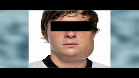 Mumps cases tied to Wilmington dance events rise - 6abc ...