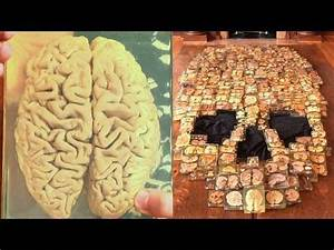 Skull Made Of Brain Slices From The Mutter Museum Collection YouTube
