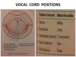 Paramedian Position Vocal Cord Paralysis