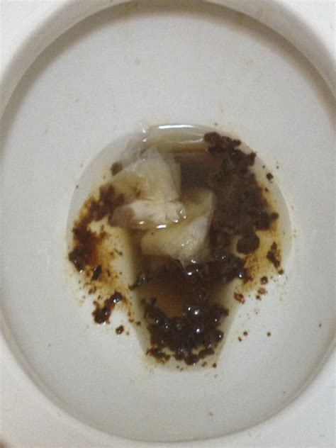 Photo Bowel Movement Green Stool Images Light Colored