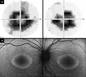 A Boy Without Color Vision - American Academy of Ophthalmology