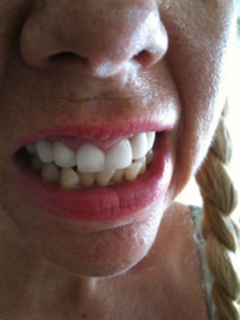 bulimia rots  teeth stop     late