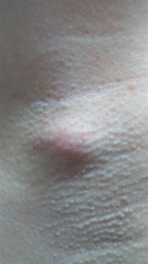 Cysts On Armpit Wwwpixsharkcom Images Galleries With