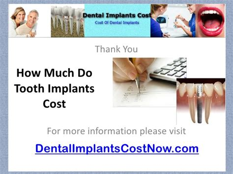 How Much Do Cost by How Much Do Tooth Implants Cost