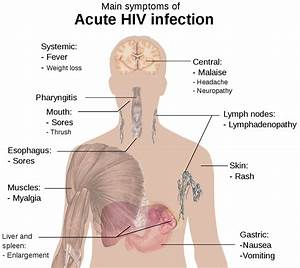 File Symptoms Of Acute Hiv Infection Svg