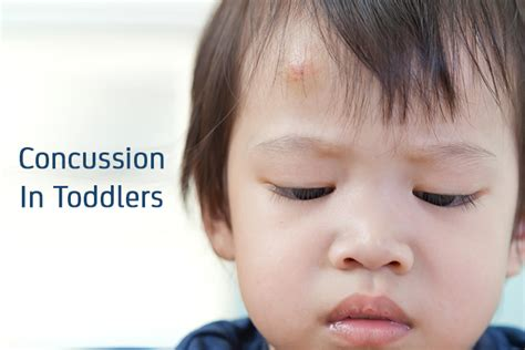 baby fell bed signs of concussion injuries in children