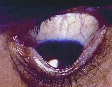 munson sign american academy  ophthalmology