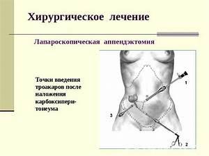 Лечение аденомы и простатита питьевой содой