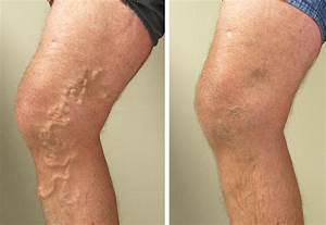 Varicose Vein Removal Treatment Orange County, CA