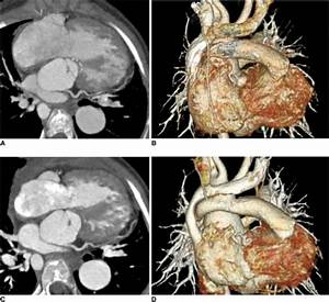Dose reduction by applying low kV and ECG-controlled tu ...