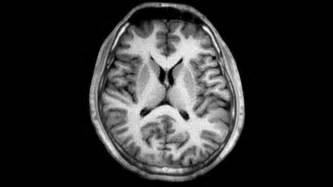 magnetresonanztomographie asklepios neurologische klinik