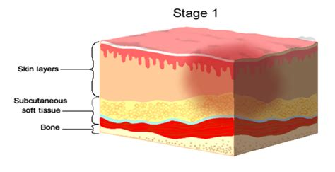 Bed Sores Stage 1 by Wound Care