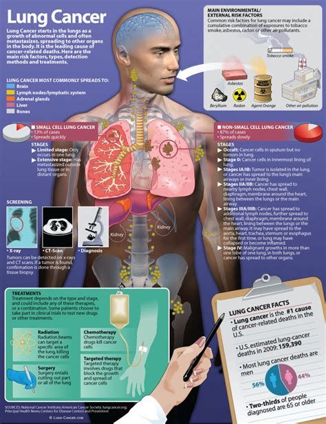 lung cancer facts visually