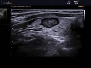 MEDISON.RU - Thyroid, nodule / Accuvix-XG