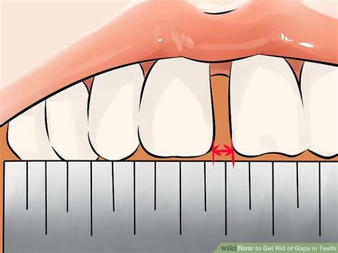 how to fix gap between how to get rid of gaps in teeth 14 steps with pictures