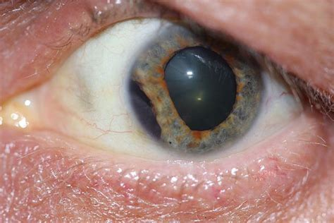traumatic iridodialysis american academy  ophthalmology