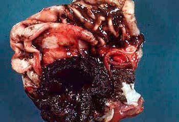 vomiting blood hematemesis ayurvedic diet natural
