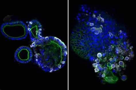 Si shumohet koronavirusi në trupin e njeriut, dalin pamjet ...