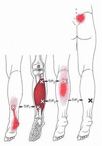 Pin On Health Myofascial Release Trigger Point