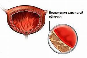 Ношпа от простатита