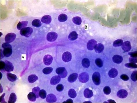Acinic Cell Carcinoma Parotid Cytology